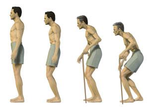 Utviklingen av Bechterews, med tiltagende ryggkrumming